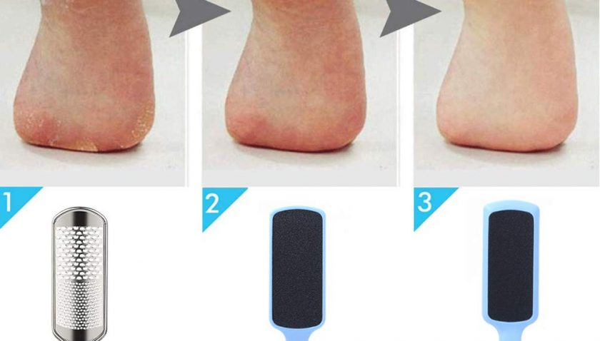 50% Discount for Foot File Callus Remover